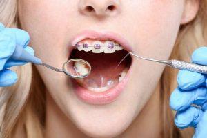 Odontologai kartais turi ištraukti kai kuriuos dantis prieš įstatant breketus