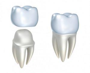 dantų karūnėlės