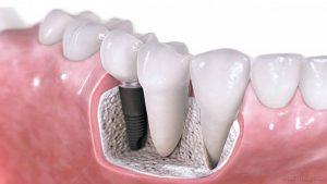Norint sėkmingai implantuoti, reikia sveikų dantenų ir kaulų