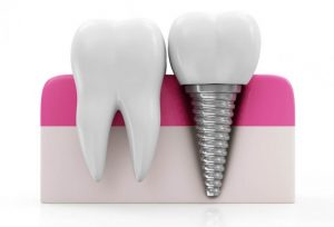 Dantų implantai pakeičia trūkstamus dantis