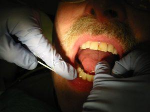 nuolatines dantu karuneles