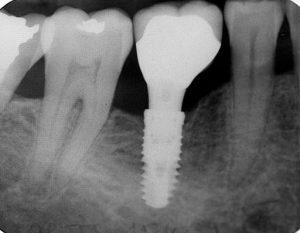 Ši rentgeno nuotrauka parodo endosalinį implantą, įkištą į žandikaulį