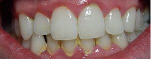 Laikui bėgant dantų apnašos sukietėja į dantų akmenis ir atsiranda dantenų uždegimas