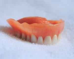 Jūsų dantenos gali pakeisti formą netrukus po dantų ištraukimo