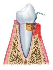 Dantų higienos metu odontologai pašalina apnašas ir dantų akmenis