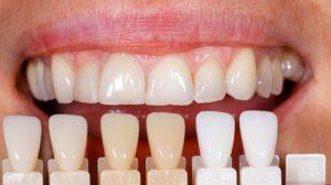 Spalvų paletė užtikrina gerą atitikimą natūraliems dantims