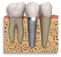 Dantų implantas gali pakeisti dantį, kuriam nepavyko sėkmingai atlikti kanalų gydymo.