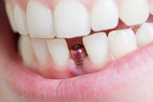 Danties karūnėlė uždedama ant atramos, pritvirtintos prie implanto