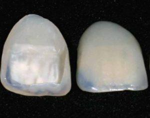 Vaizdas iš priekio ir galo dantų laminatės