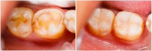 Plombavimas yra efektyvus būdas atstatyti dantų ėduonies padarytą žalą