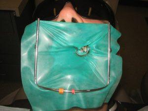 Dantų uždanga padeda apsaugoti jus ir dantis gydymo metu.