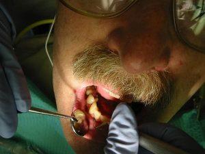 Atliekama dantų higiena