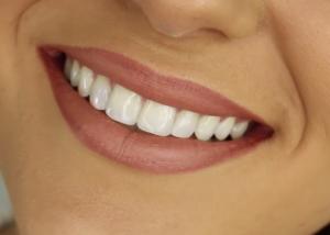 Natūralesnė šypsena