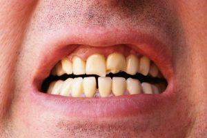 Šis pacientas su nuskilusiais dantimis būtų geras kandidatas.