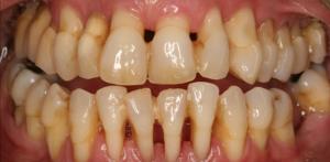 Pažengęs dantenų ligos atvejis, kai nyksta dantenos