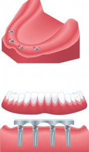 dantų protezai ant implantų