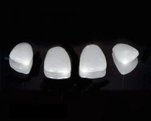 Galima pasirinkti iš kelių dantų laminatės