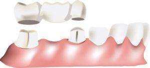 Tai trijų elementų tiltelis, sudarytas iš dviejų karūnėlių ir vieno dirbtinio danties